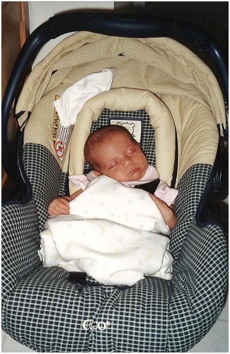 Baby with Niemann-Pick Type C Disease